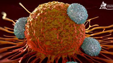 تصویربرداری و غربالگری سرطان روده بزرگ