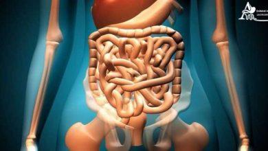 سندروم روده تحریک پذیر چیست؟
