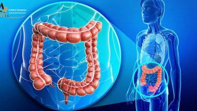 پولیپ روده بزرگ یا کولون چیست ؟ آشنایی با انواع پولیپ های روده بزرگ