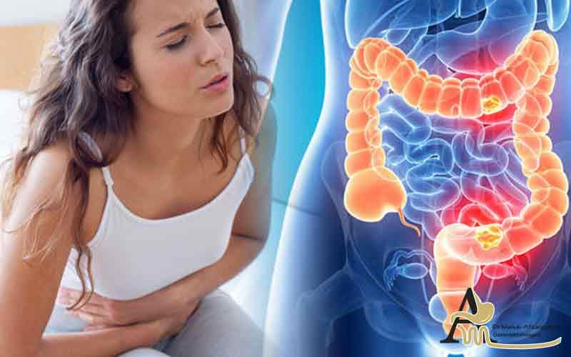 داروهای سندروم روده تحریک پذیر