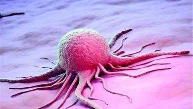 غربالگری سرطان معده
