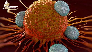 غربالگری و درمان سرطان با تخفیف