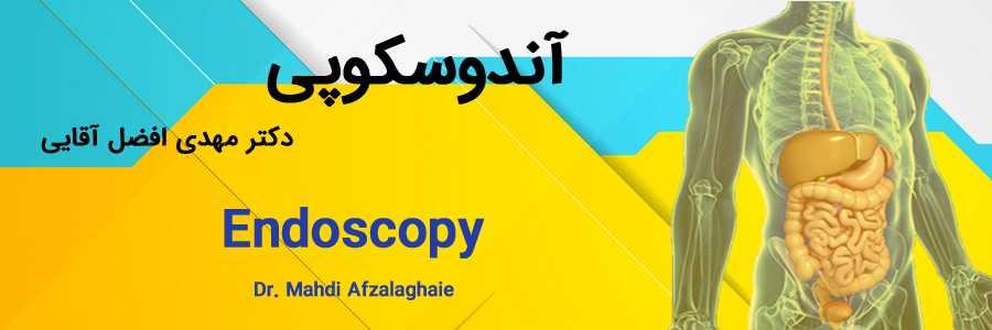 آندوسکوپی