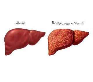 انواع هپاتیت